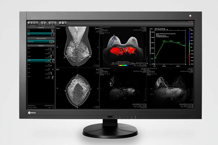 EIZO monitores - Equipamiento para Sanidad